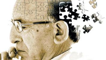 Herpeszvírusok állhatnak az Alzheimer-kór hátterében egy új kutatás szerint - illusztráció