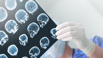 Magyar fejlesztésű hatóanyag segítheti a stroke betegek gyógyulását - illusztráció