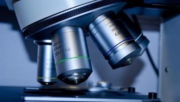 Őssejt-transzplantációval lelassították a szklerózis multiplex súlyosbodását - illusztráció