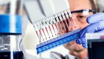 Az immunterápia hozhatja meg az áttörést a rákgyógyításban? - illusztráció