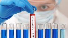 Koronavírus: Erdélyben is megjelent a fertőzés - illusztráció