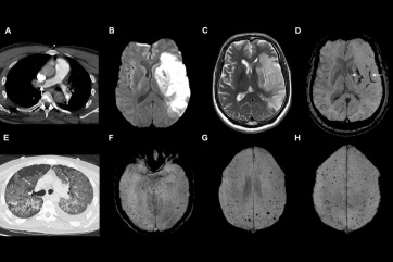 A koronavírus elpusztítja az agysejteket egy kutatás szerint - A cikkhez tartozó kép