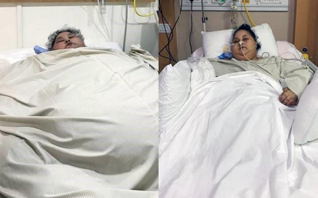 Két hónap alatt felére fogyott a világ legkövérebb nője