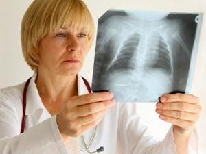 Magyarországon a legmagasabb a tüdőrák okozta halálesetek aránya az EU-ban